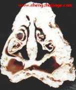 猪传染性萎缩性鼻炎